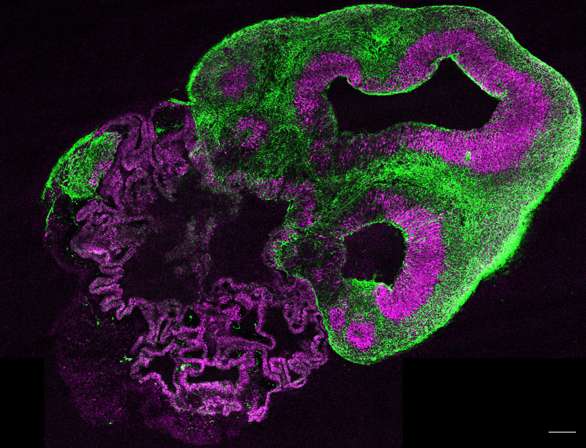 A section through a whole organoid stained for neurons in green and neural stem cells in magenta.