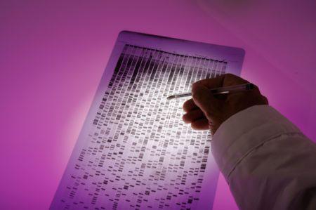 An autoradiograph (autorad) showing a DNA sample pattern.