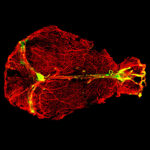Antibody-producing plasma cells line the dural venous sinuses