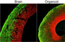 brain and organoid